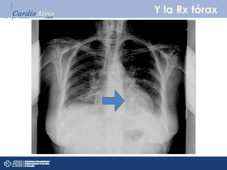 Y la Rx tórax La Rx tórax destaca ligero edema intersticial y se aprecia calcificiación a nivel del anillo mitral.