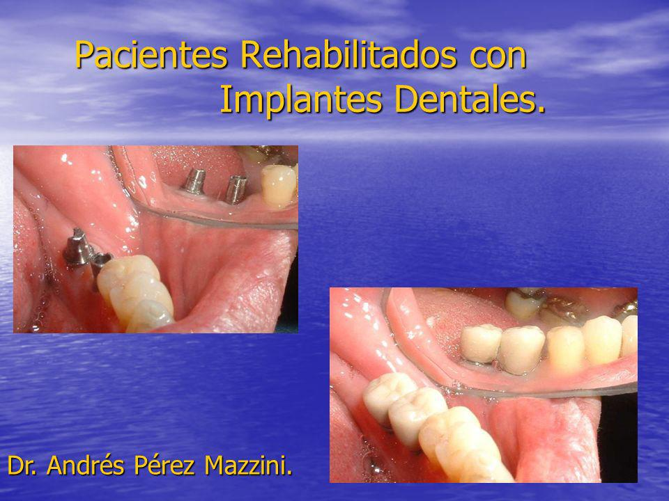 Pacientes Rehabilitados con Implantes Dentales.