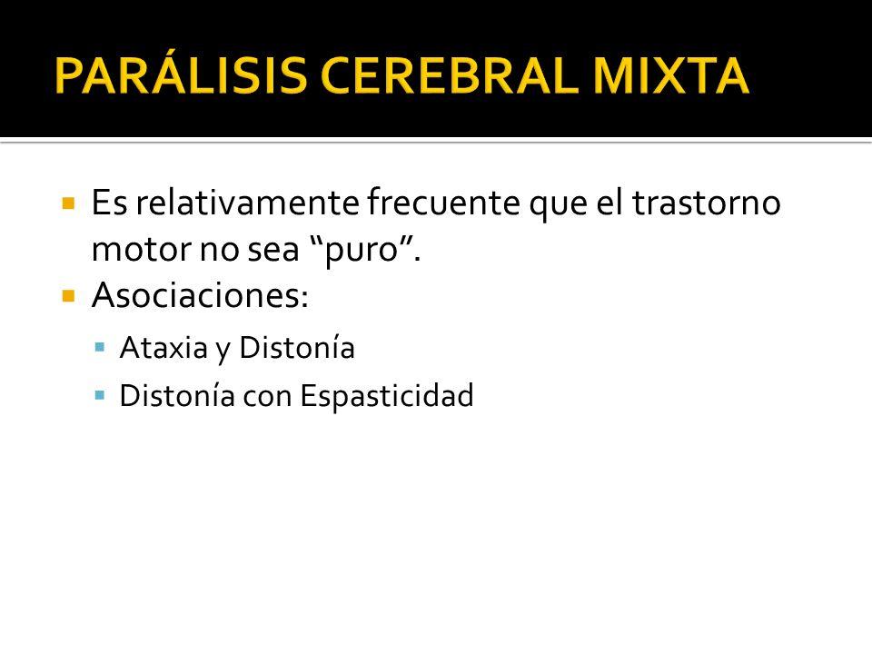 PARÁLISIS CEREBRAL MIXTA