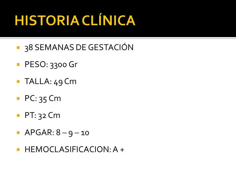 HISTORIA CLÍNICA 38 SEMANAS DE GESTACIÓN PESO: 3300 Gr TALLA: 49 Cm