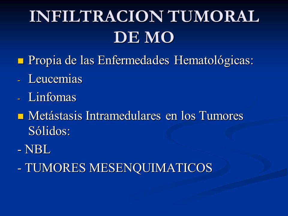 INFILTRACION TUMORAL DE MO