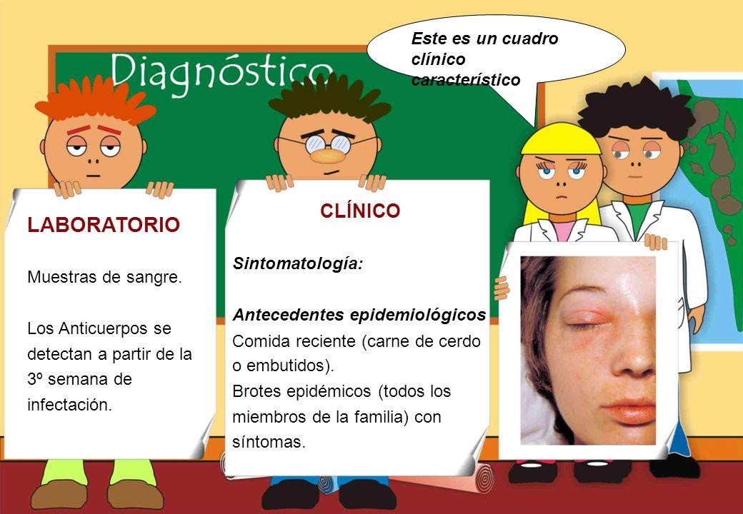 LABORATORIO CLÍNICO Este es un cuadro clínico característico