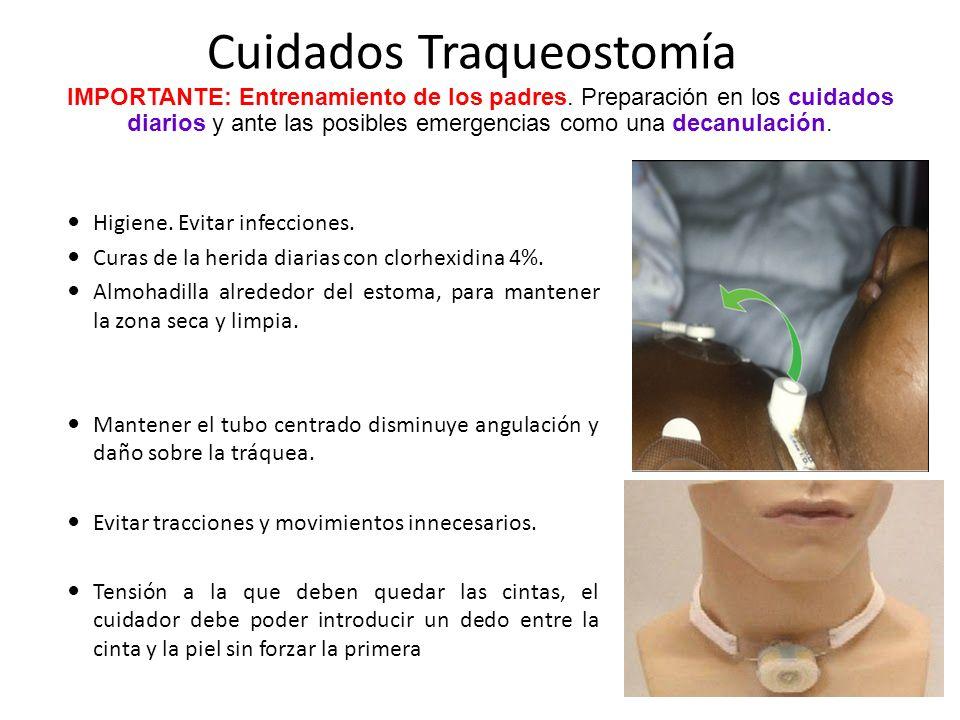 Cuidados Traqueostomía