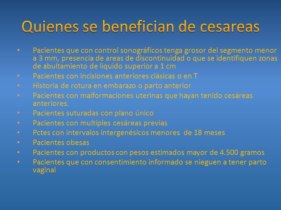 Quienes se benefician de cesareas