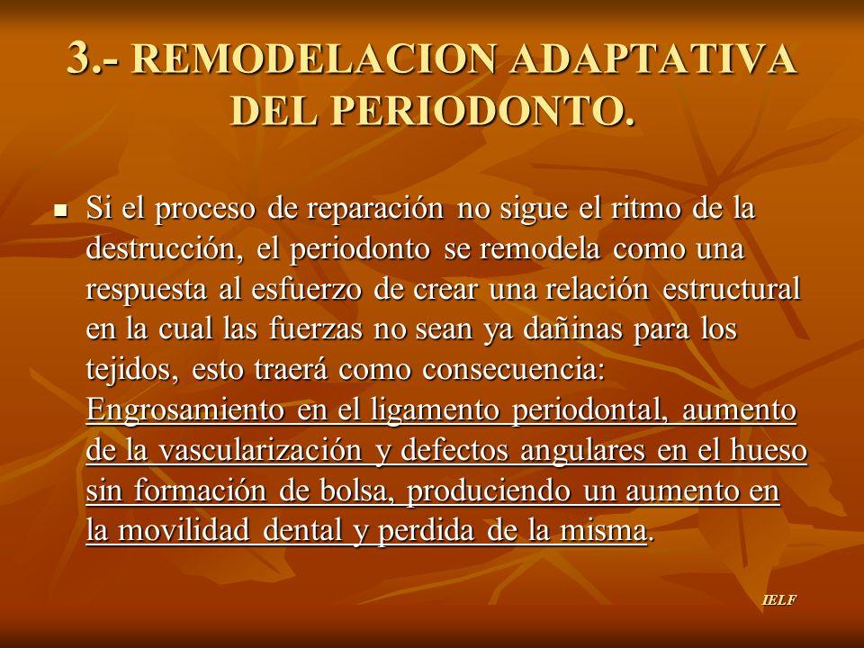 3.- REMODELACION ADAPTATIVA DEL PERIODONTO.