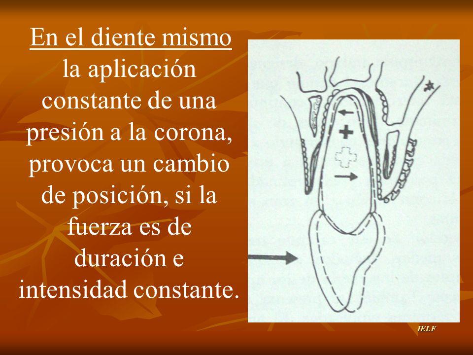En el diente mismo la aplicación constante de una presión a la corona, provoca un cambio de posición, si la fuerza es de duración e intensidad constante.