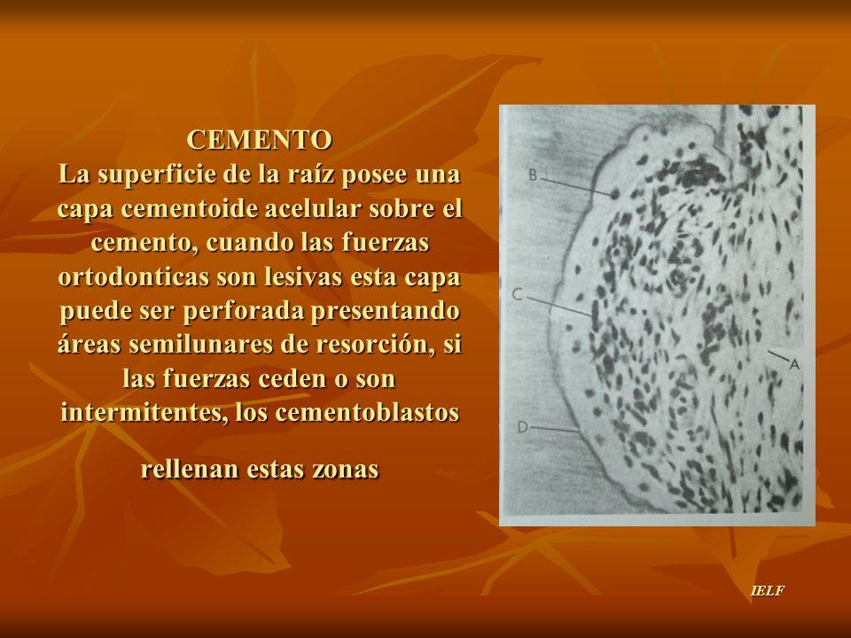 CEMENTO La superficie de la raíz posee una capa cementoide acelular sobre el cemento, cuando las fuerzas ortodonticas son lesivas esta capa puede ser perforada presentando áreas semilunares de resorción, si las fuerzas ceden o son intermitentes, los cementoblastos rellenan estas zonas