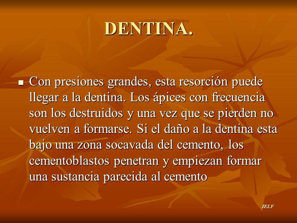 DENTINA.