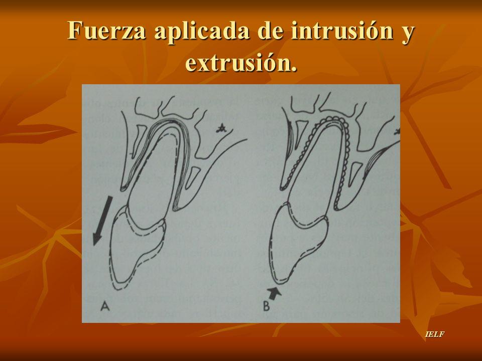 Fuerza aplicada de intrusión y extrusión.