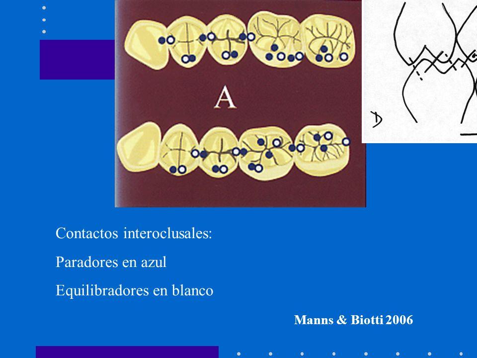 Contactos interoclusales: