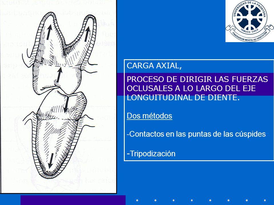 -Tripodización CARGA AXIAL,