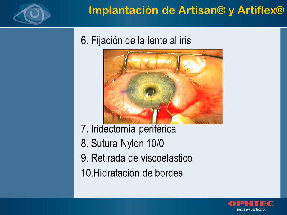 Implantación de Artisan® y Artiflex®