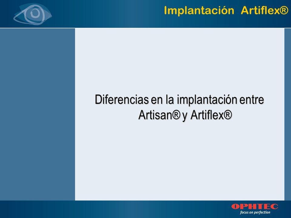 Diferencias en la implantación entre Artisan® y Artiflex®
