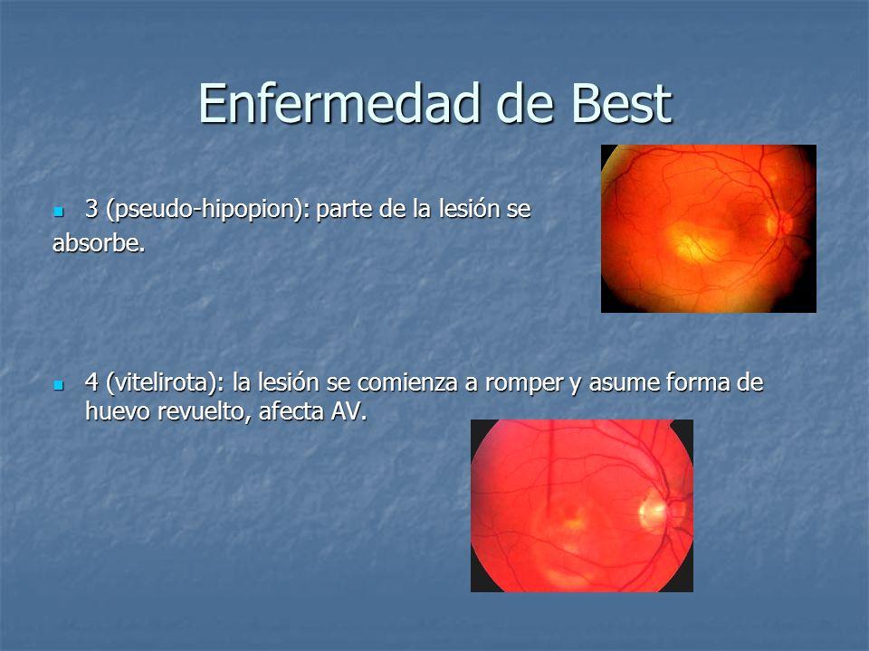 Enfermedad de Best 3 (pseudo-hipopion): parte de la lesión se absorbe.