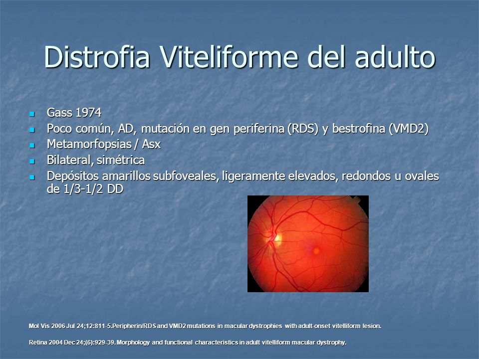 Distrofia Viteliforme del adulto