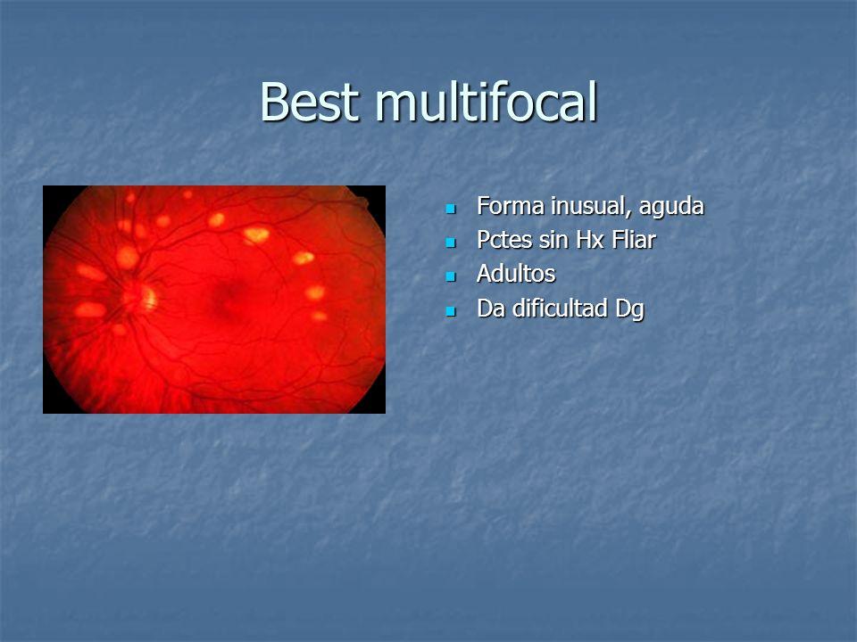 Best multifocal Forma inusual, aguda Pctes sin Hx Fliar Adultos