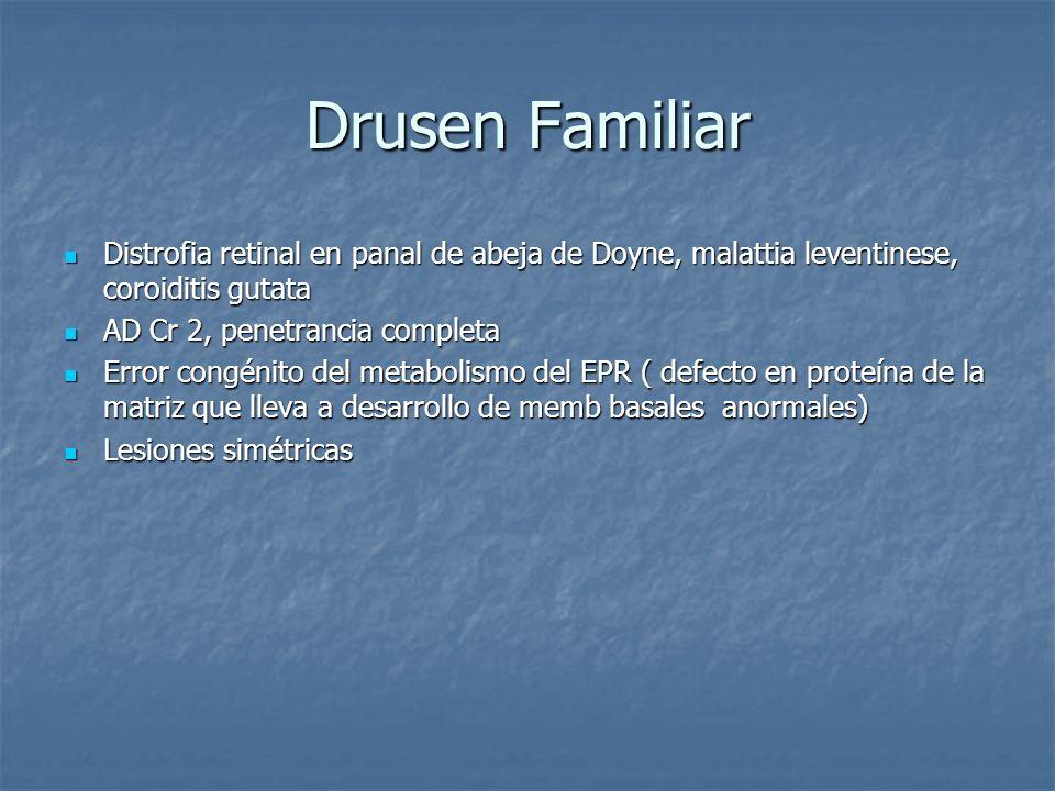 Drusen FamiliarDistrofia retinal en panal de abeja de Doyne, malattia leventinese, coroiditis gutata.