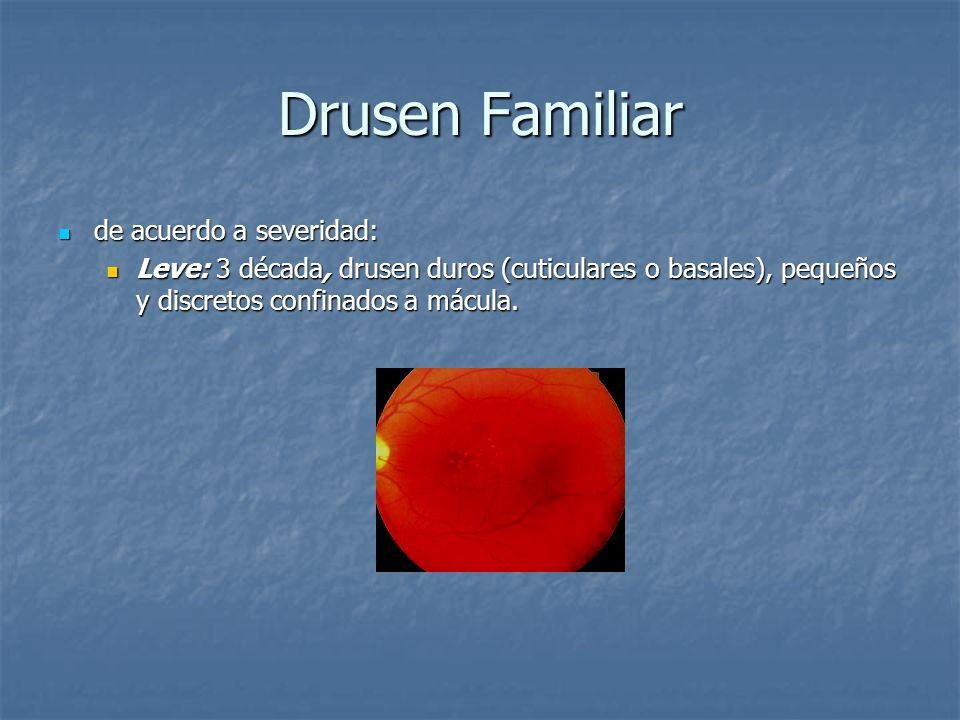 Drusen Familiar de acuerdo a severidad: