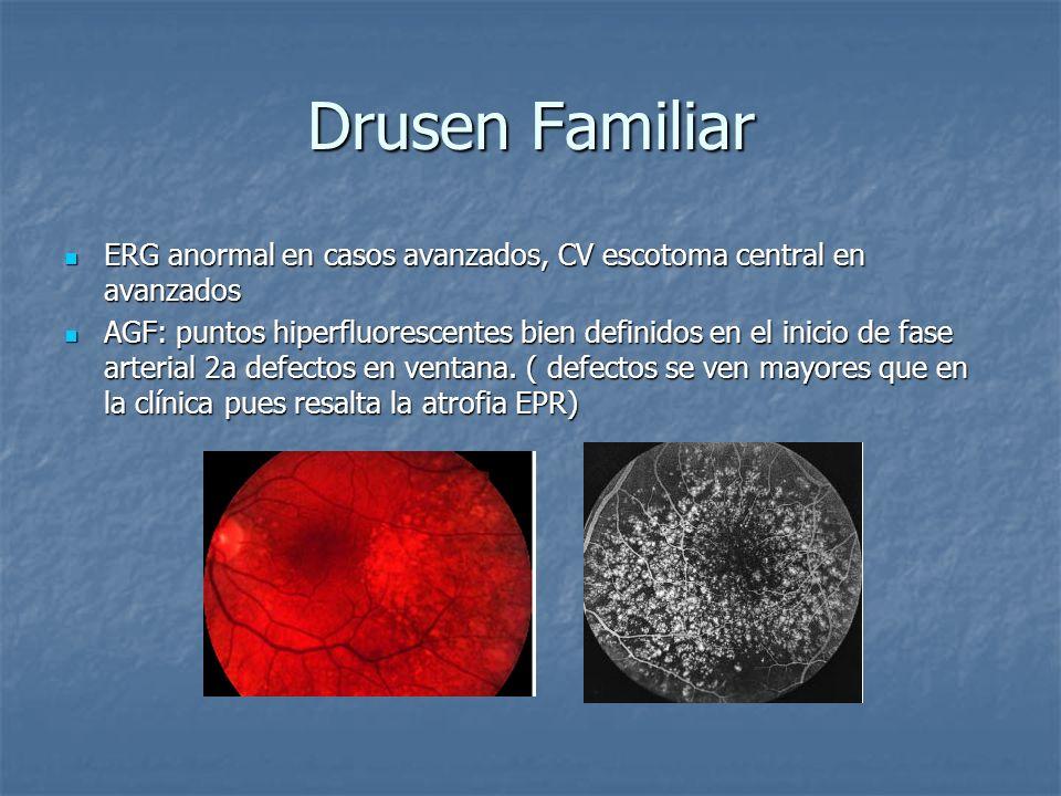 Drusen Familiar ERG anormal en casos avanzados, CV escotoma central en avanzados.
