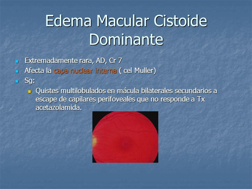 Edema Macular Cistoide Dominante