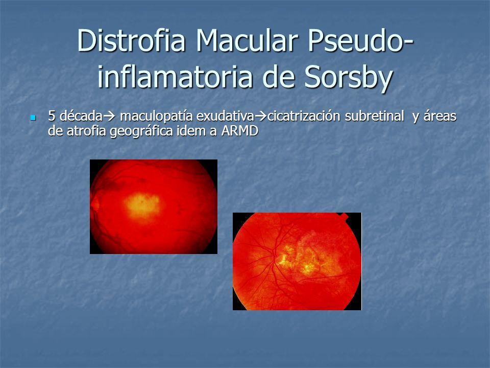 Distrofia Macular Pseudo-inflamatoria de Sorsby
