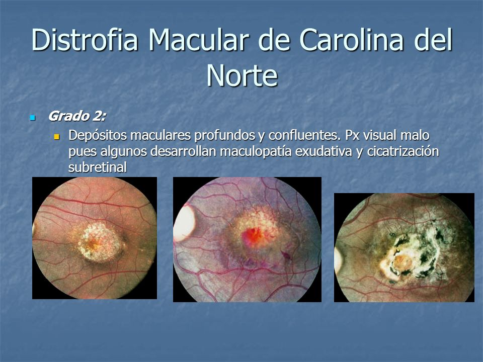 Distrofia Macular de Carolina del Norte