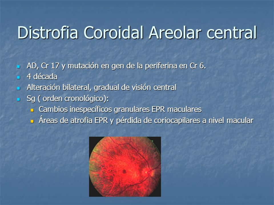 Distrofia Coroidal Areolar central