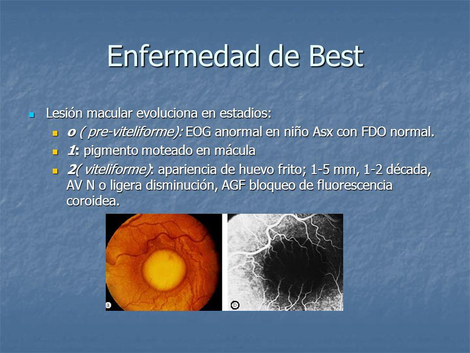 Enfermedad de Best Lesión macular evoluciona en estadios: