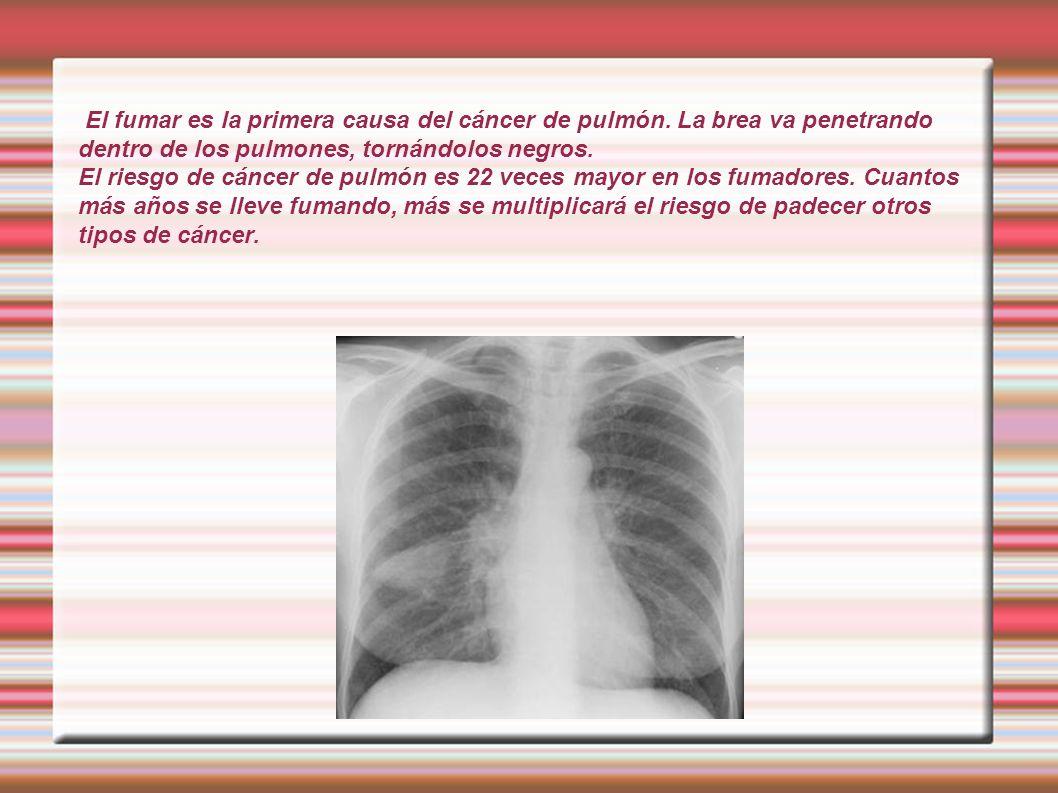 El fumar es la primera causa del cáncer de pulmón