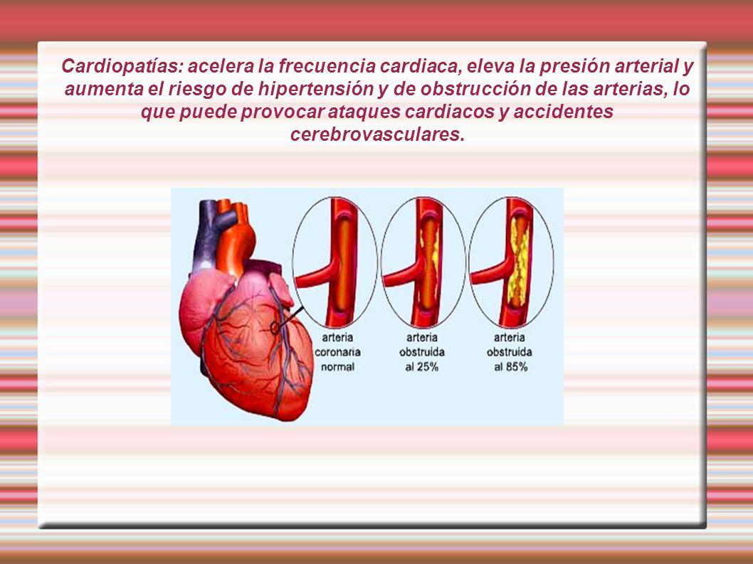 Cardiopatías: acelera la frecuencia cardiaca, eleva la presión arterial y aumenta el riesgo de hipertensión y de obstrucción de las arterias, lo que puede provocar ataques cardiacos y accidentes cerebrovasculares.