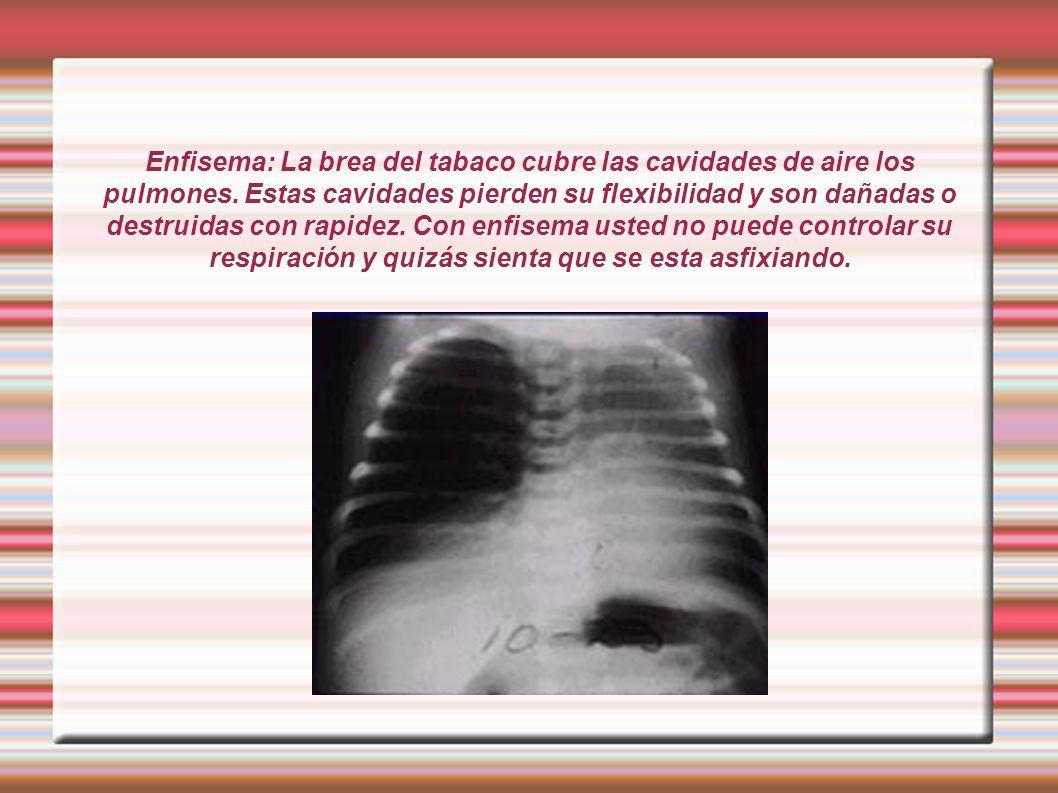 Enfisema: La brea del tabaco cubre las cavidades de aire los pulmones