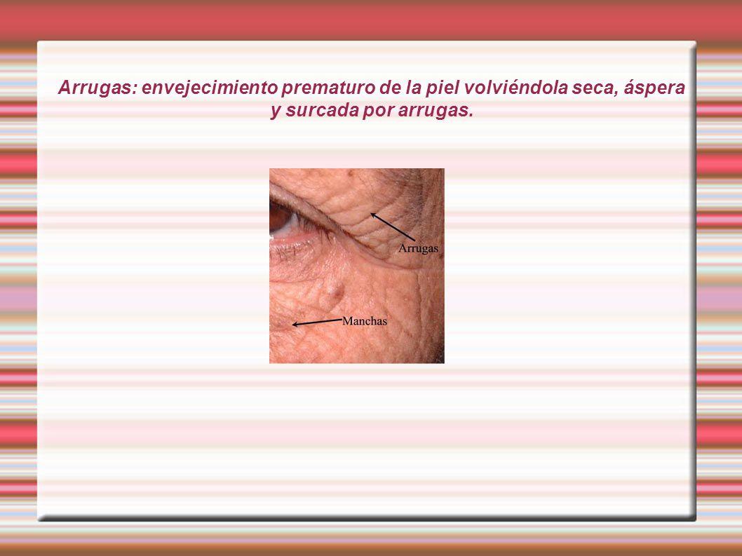 Arrugas: envejecimiento prematuro de la piel volviéndola seca, áspera y surcada por arrugas.