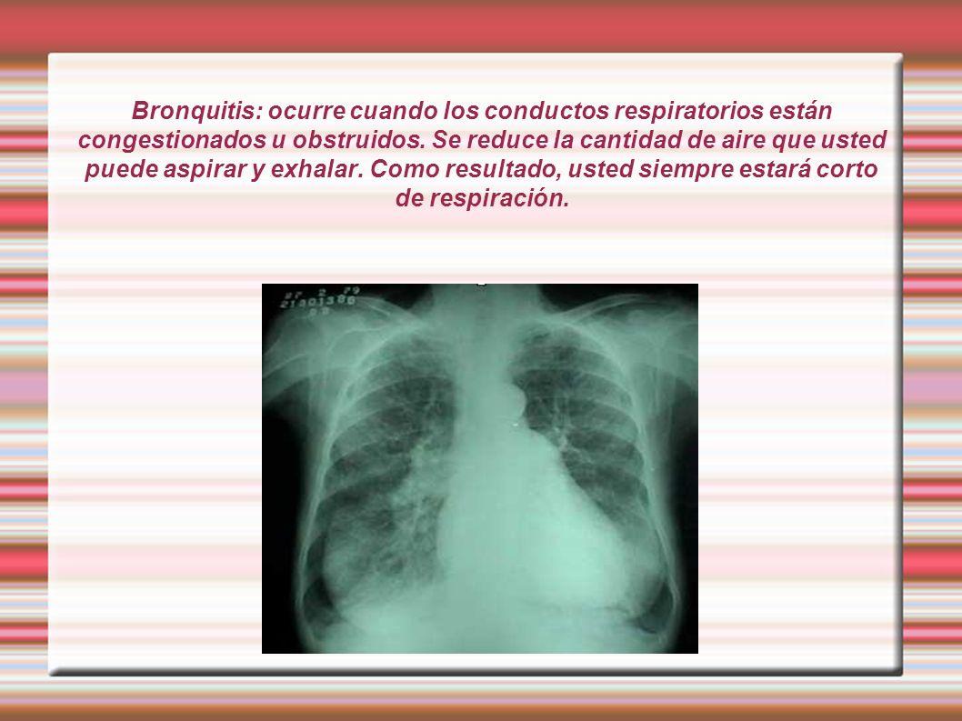 Bronquitis: ocurre cuando los conductos respiratorios están congestionados u obstruidos.