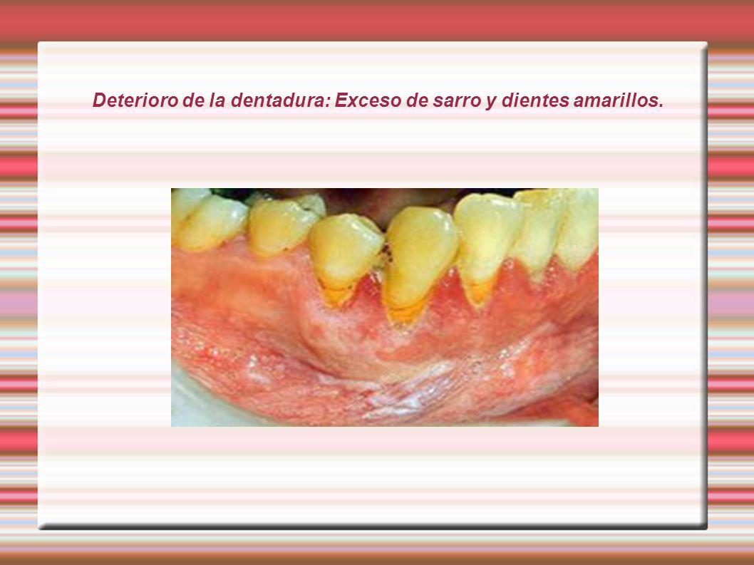 Deterioro de la dentadura: Exceso de sarro y dientes amarillos.