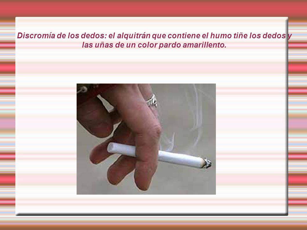 Discromía de los dedos: el alquitrán que contiene el humo tiñe los dedos y las uñas de un color pardo amarillento.
