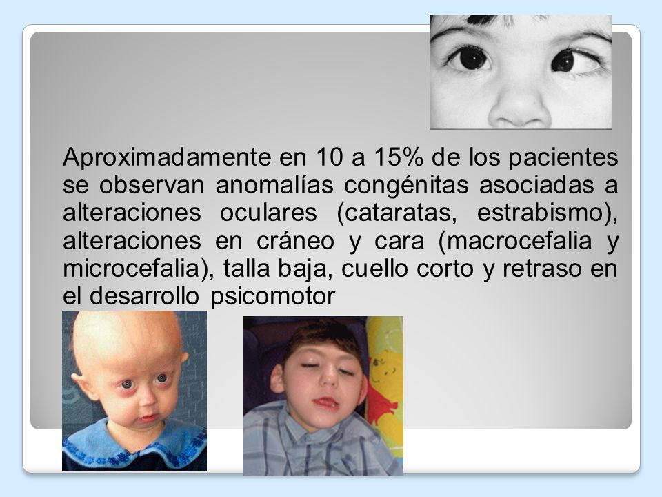 Aproximadamente en 10 a 15% de los pacientes se observan anomalías congénitas asociadas a alteraciones oculares (cataratas, estrabismo), alteraciones en cráneo y cara (macrocefalia y microcefalia), talla baja, cuello corto y retraso en el desarrollo psicomotor