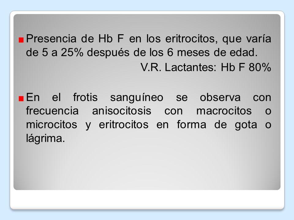 Presencia de Hb F en los eritrocitos, que varía de 5 a 25% después de los 6 meses de edad.