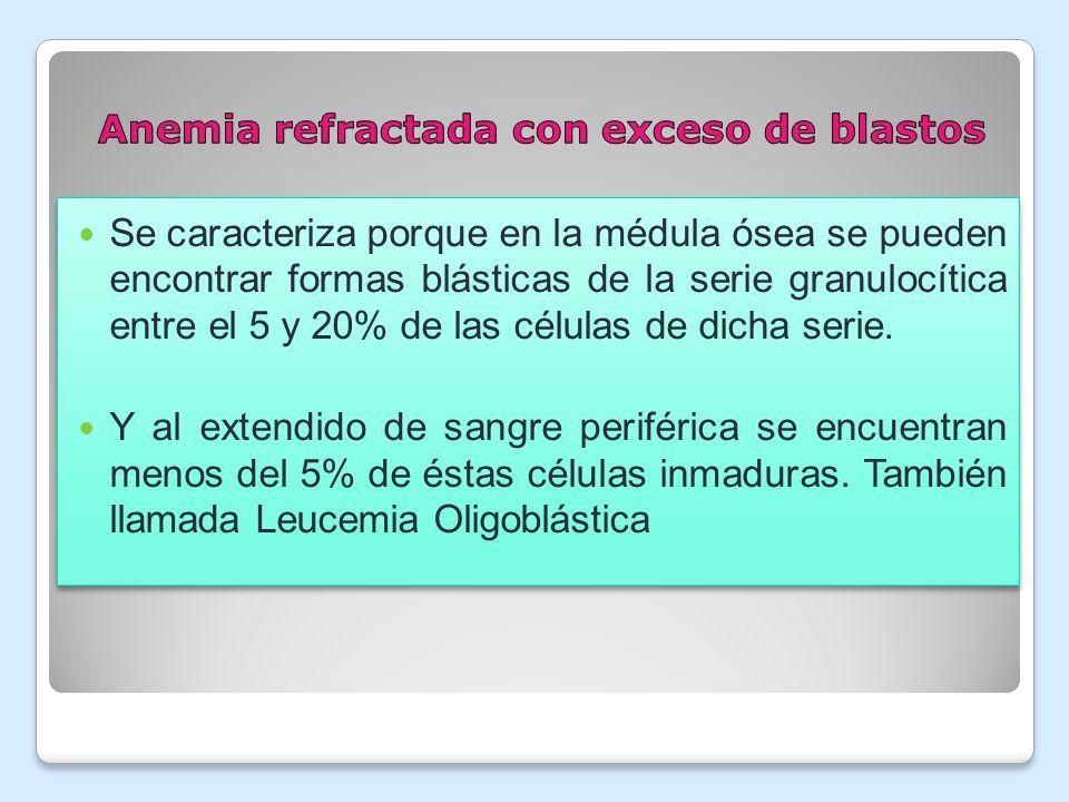 Anemia refractada con exceso de blastos