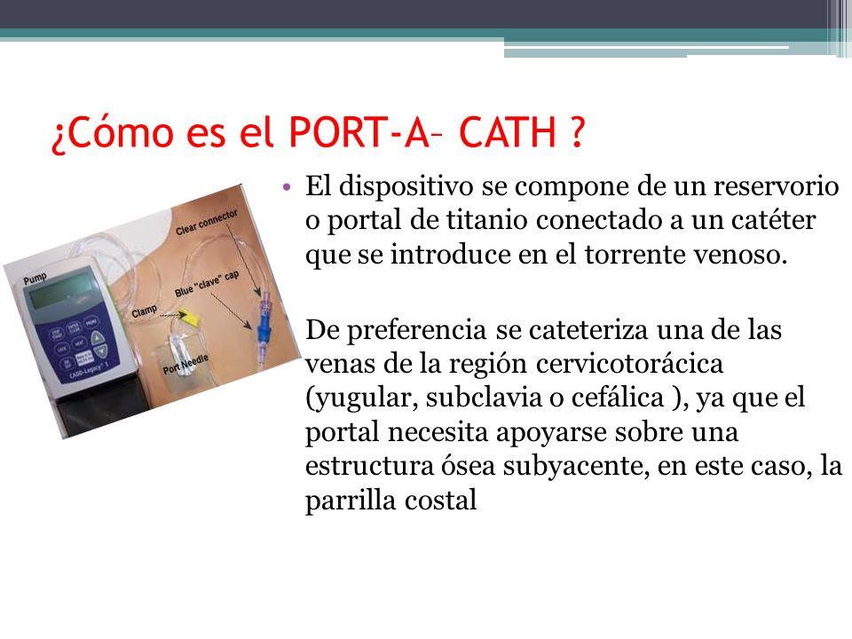 ¿Cómo es el PORT-A– CATH