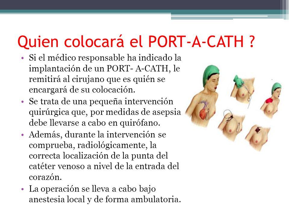 Quien colocará el PORT-A-CATH