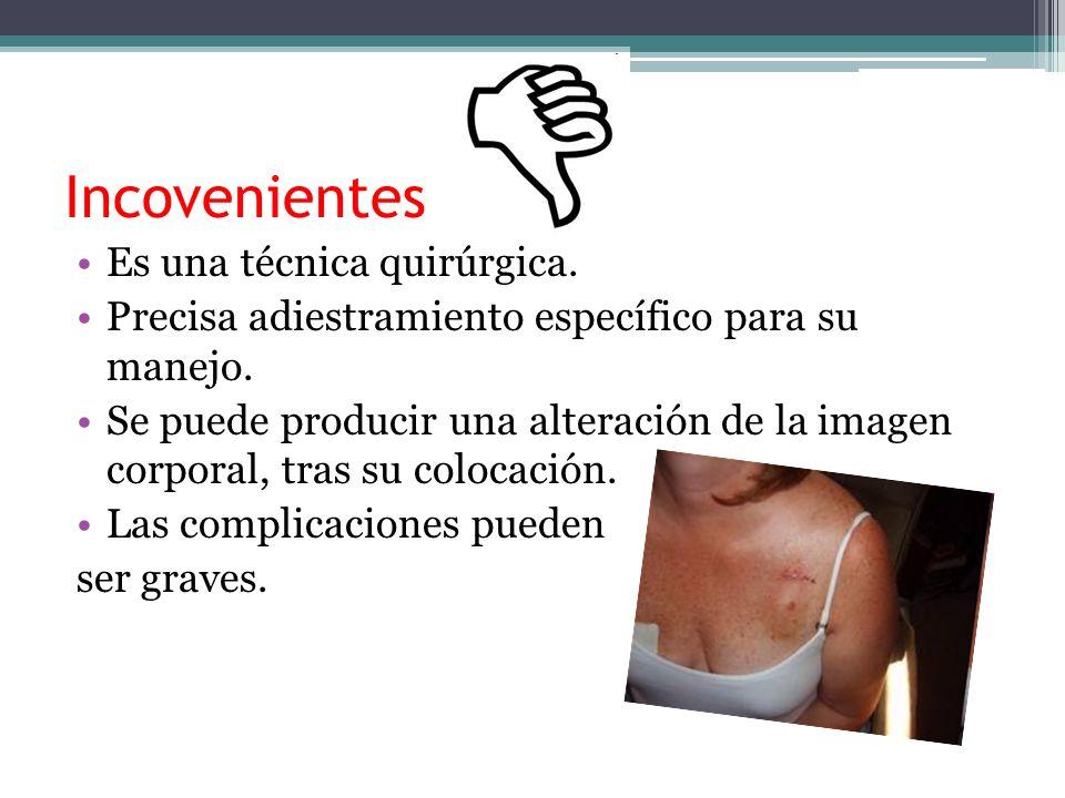 Incovenientes Es una técnica quirúrgica.