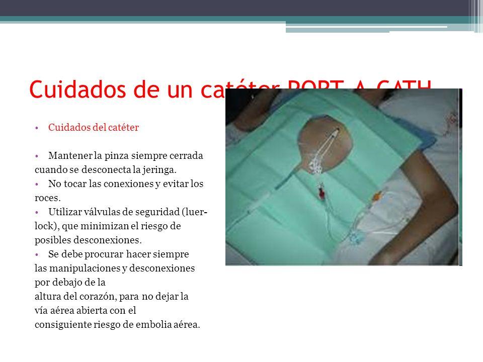 Cuidados de un catéter PORT-A-CATH