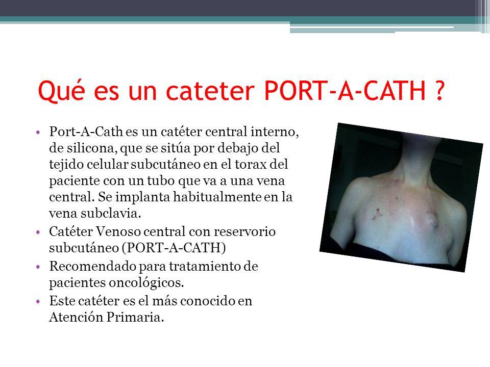 Qué es un cateter PORT-A-CATH