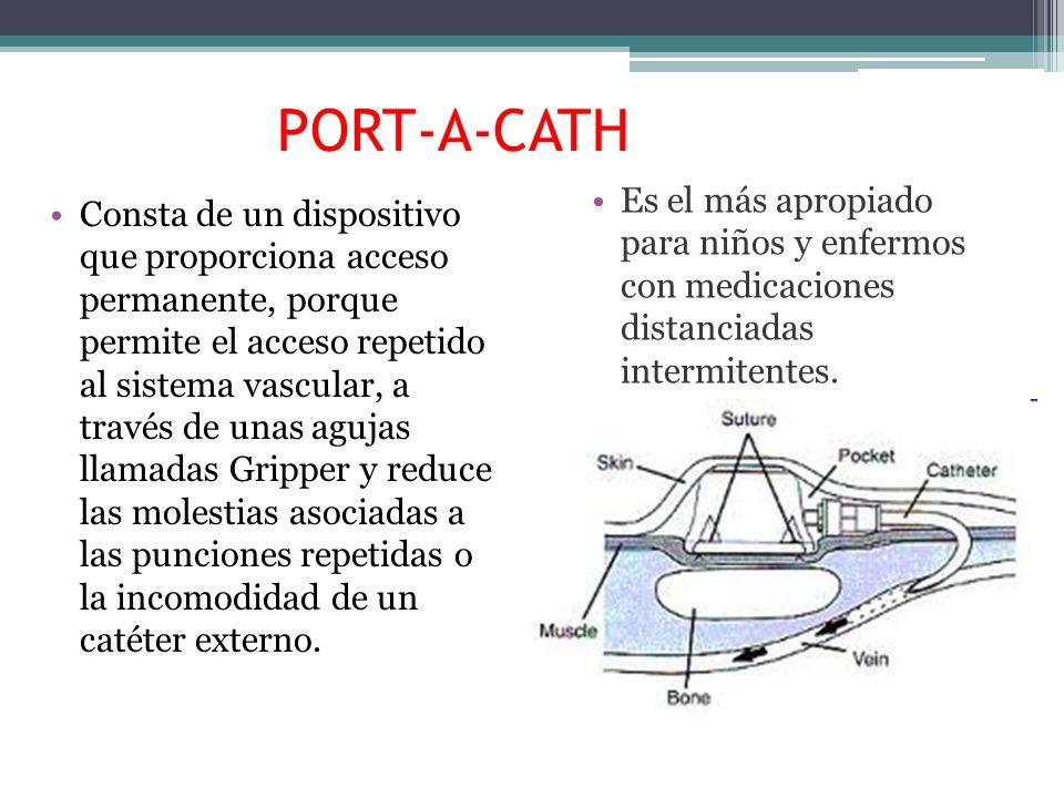 PORT-A-CATH Es el más apropiado para niños y enfermos con medicaciones distanciadas intermitentes.
