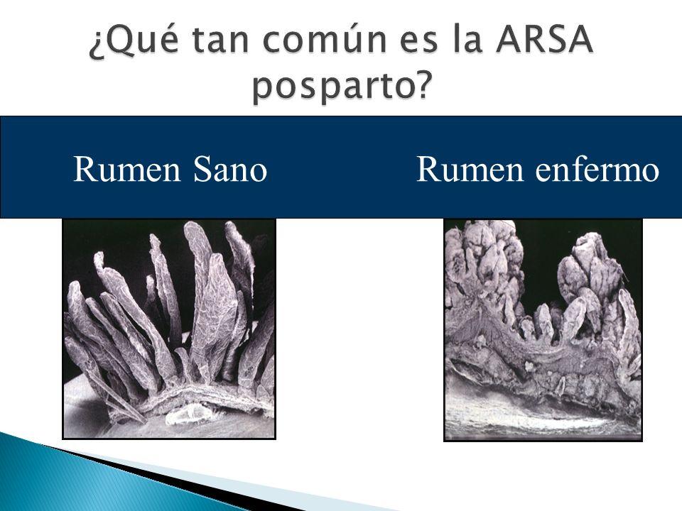 ¿Qué tan común es la ARSA posparto