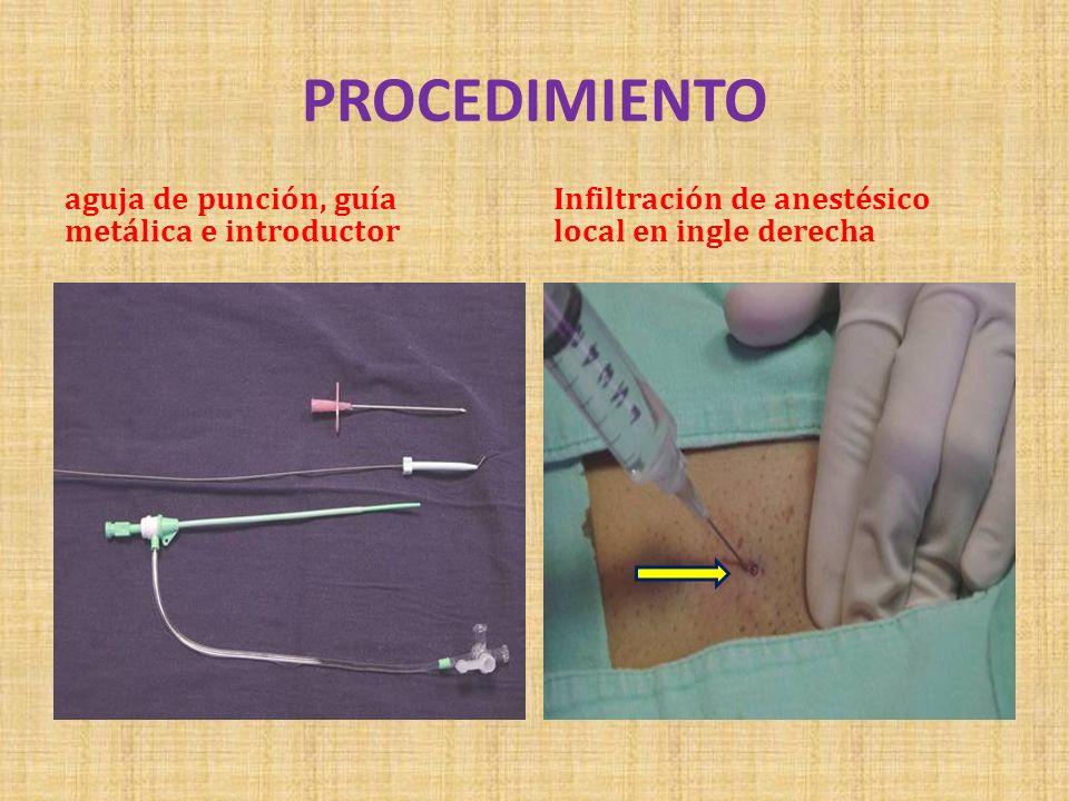 PROCEDIMIENTO aguja de punción, guía metálica e introductor