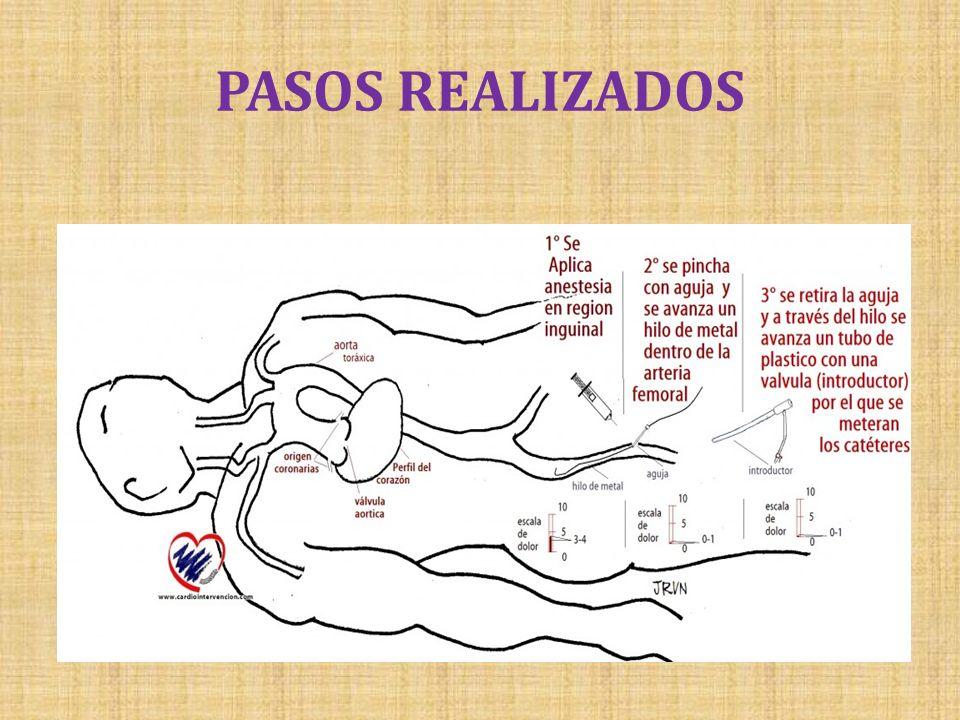 PASOS REALIZADOS