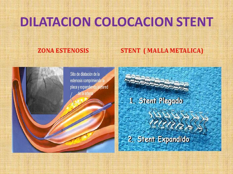 DILATACION COLOCACION STENT