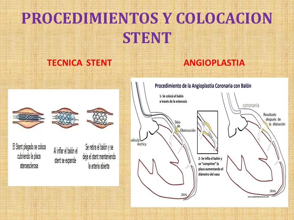 PROCEDIMIENTOS Y COLOCACION STENT