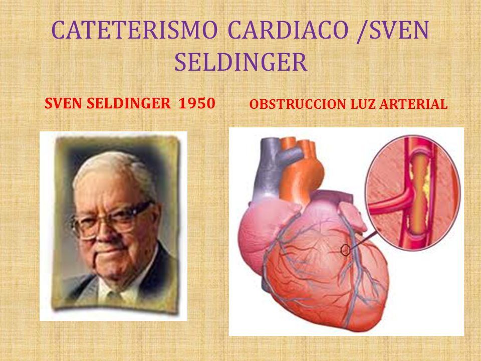 CATETERISMO CARDIACO /SVEN SELDINGER